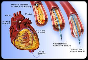 Khung giá đỡ động mạch vành bằng hợp kim Crom Cobalt loại không bọc thuốc